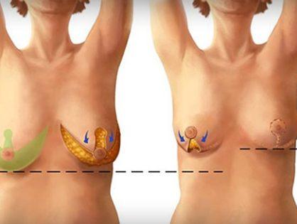 sfârcurile se micșorează după pierderea în greutate)